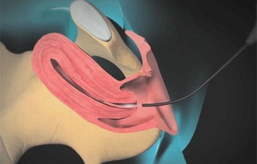 Удаление полипа матки методом гистероскопии, этапы операции, результат