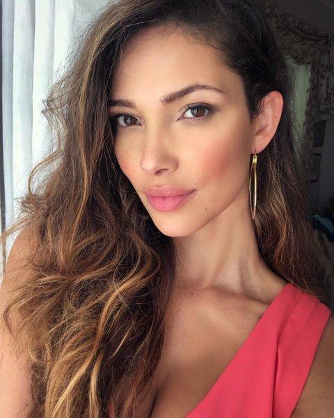 Модель Victoria's Secret лишилась прекрасной внешности из-за клопов